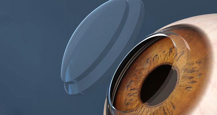 ortocheratologia